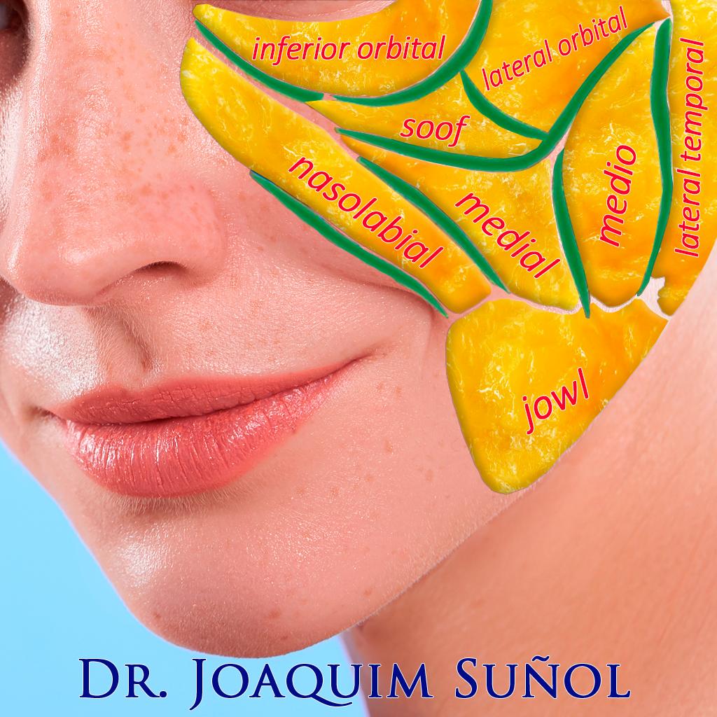 compartimentos grasa facial anatomia joaquim suñol cirugia plastica estetica barcelona
