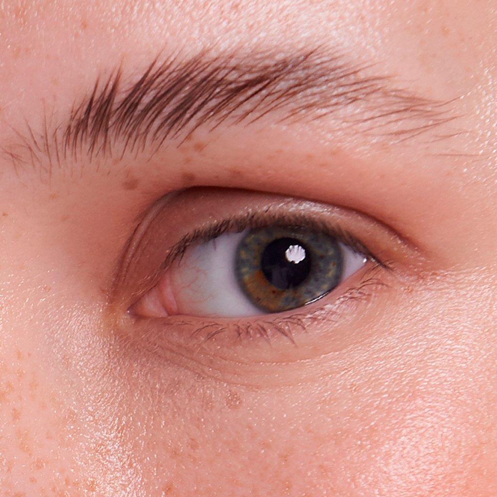 ojos blefaroplastia cirugia plastica estetica joaquim suñol barcelona