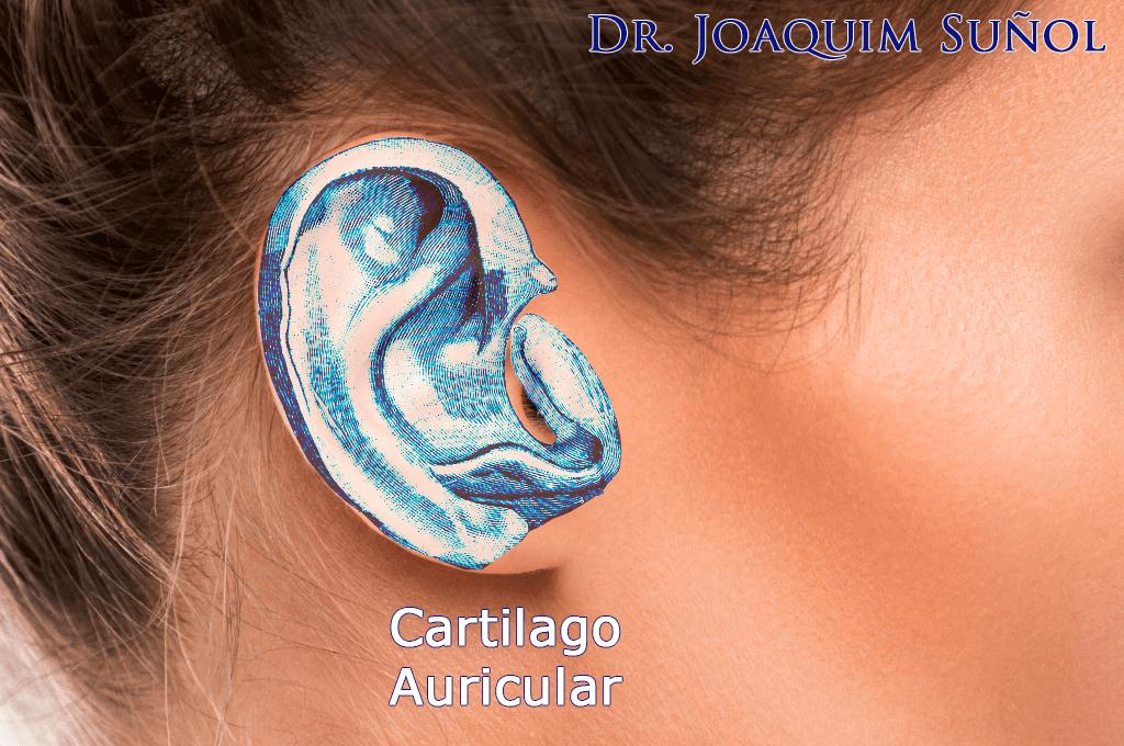 cartilago orejas anatomia otoplastia joaquim suñol cirugia plastica estetica barcelona