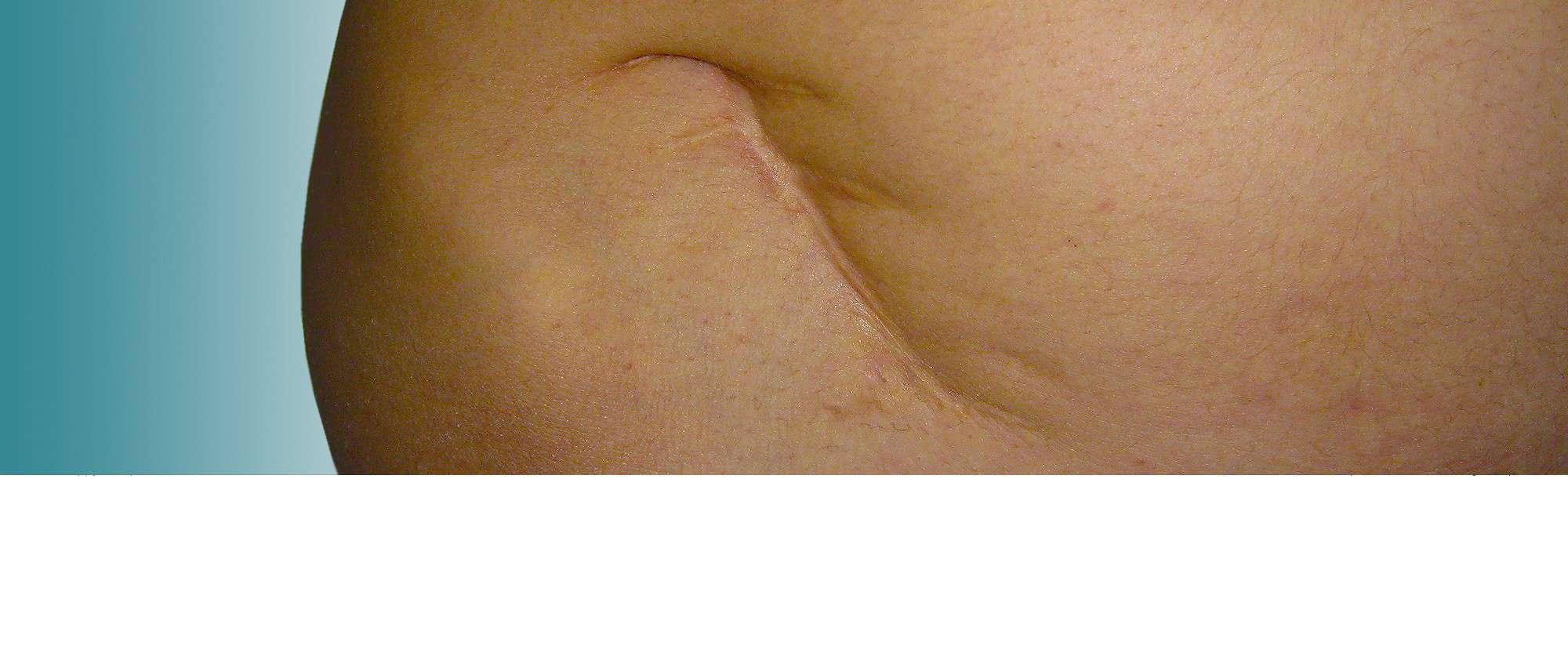 cicatrices joaquim sunol cirugia plastica secundaria
