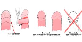 fimosis-joaquim-sunol-barcelona