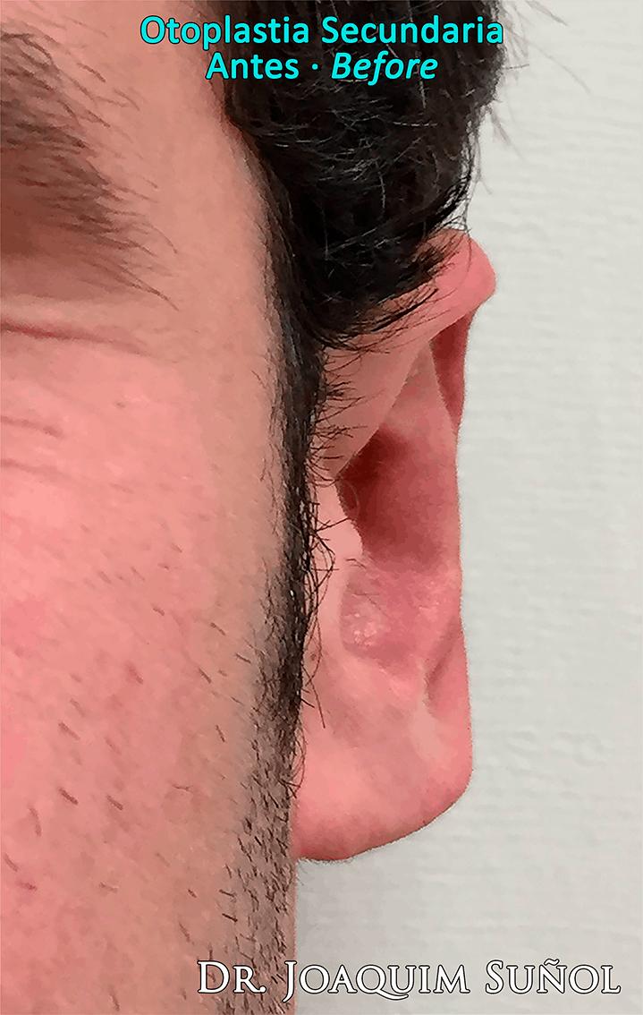 rotacion-lobulos-otoplastia-secundaria-joaquim-sunol-barcelona-cirugia-estetica