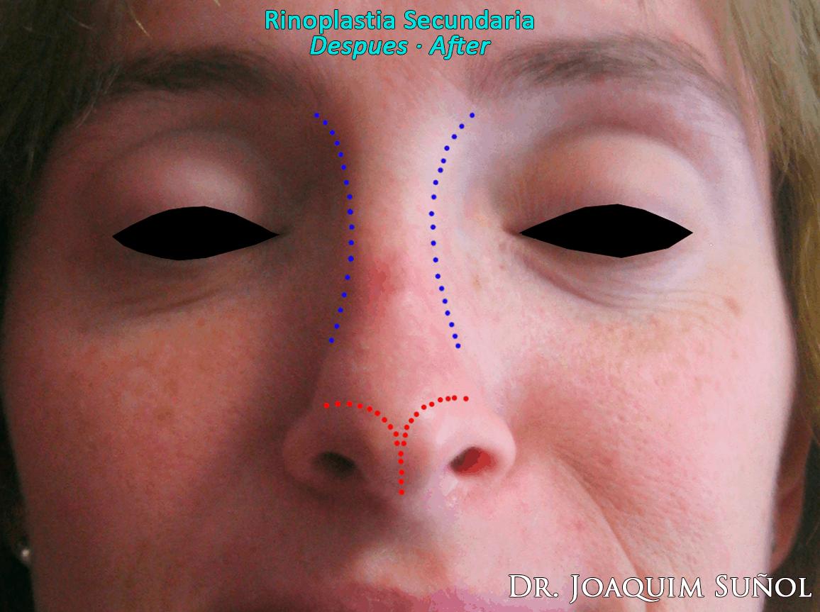 cirugia estetica secundaria rinoplastia joaquim sunol