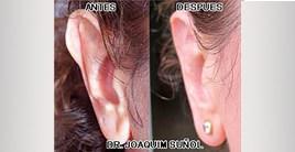 otoplatia orejas joaquim sunol cirugia estetica plastica secundaria