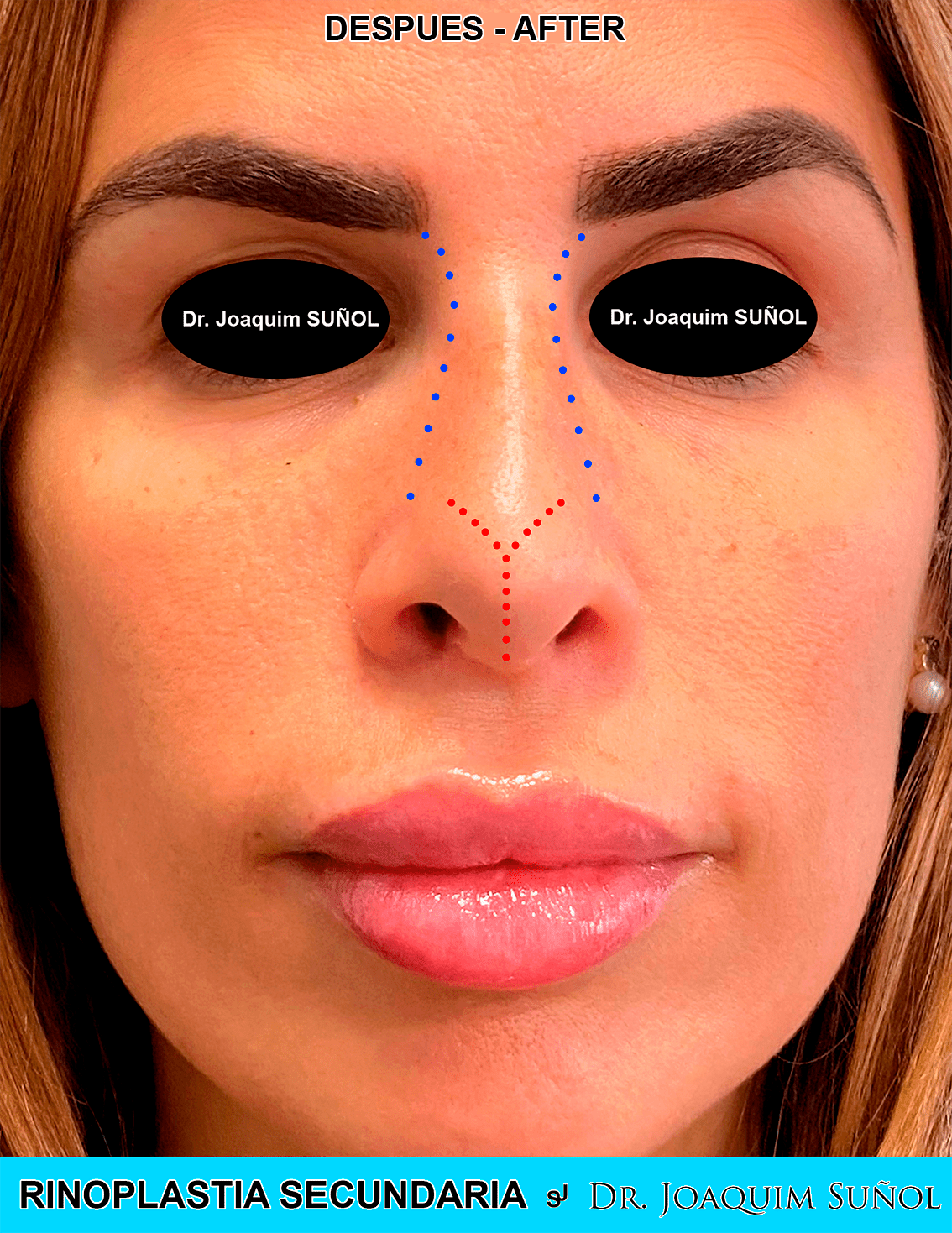 Rinoplastia Secundaria cirugia plastica estetica joaquim suñol barcelona postop
