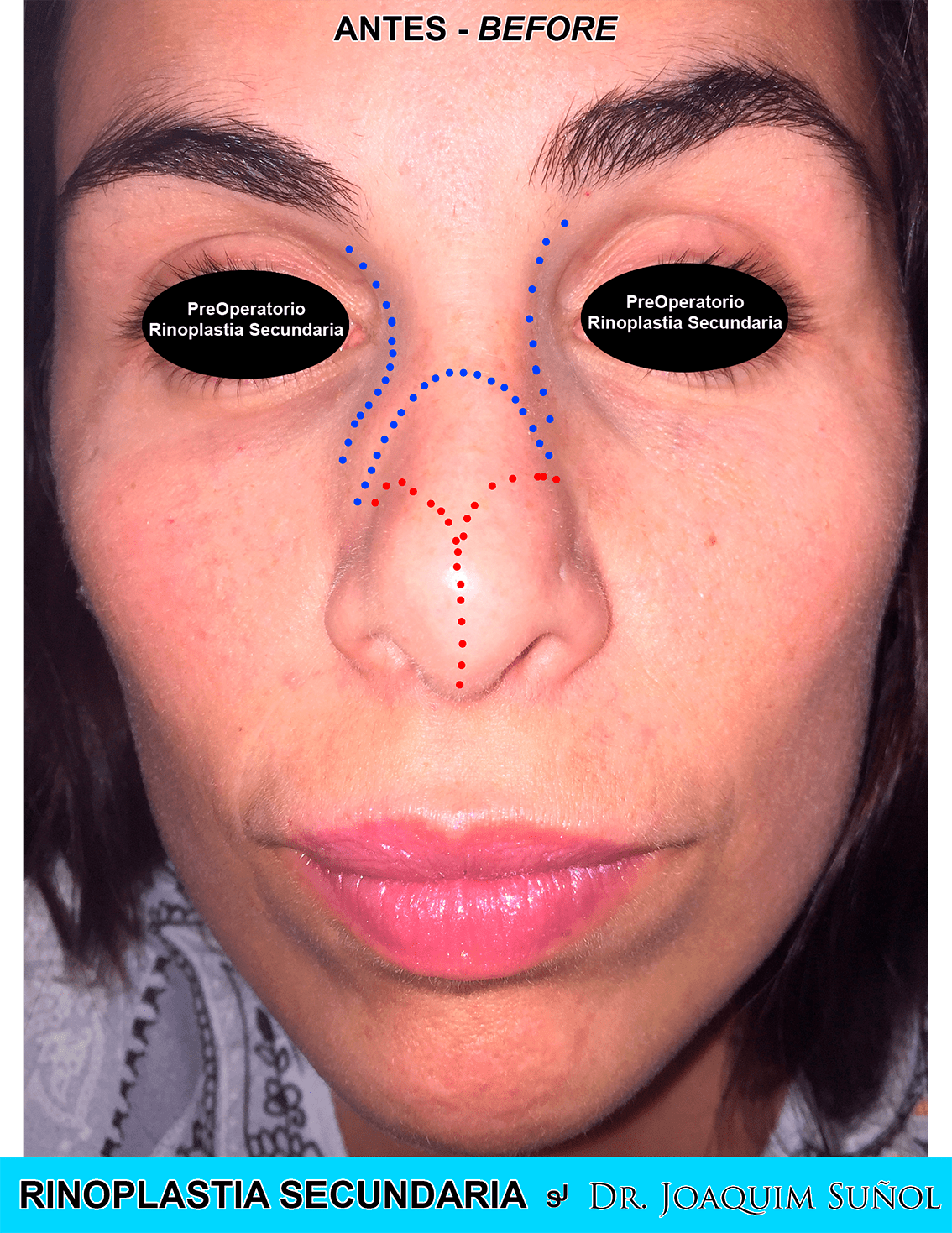 Rinoplastia Secundaria cirugia plastioca estetica joaquim suñol barcelona preop
