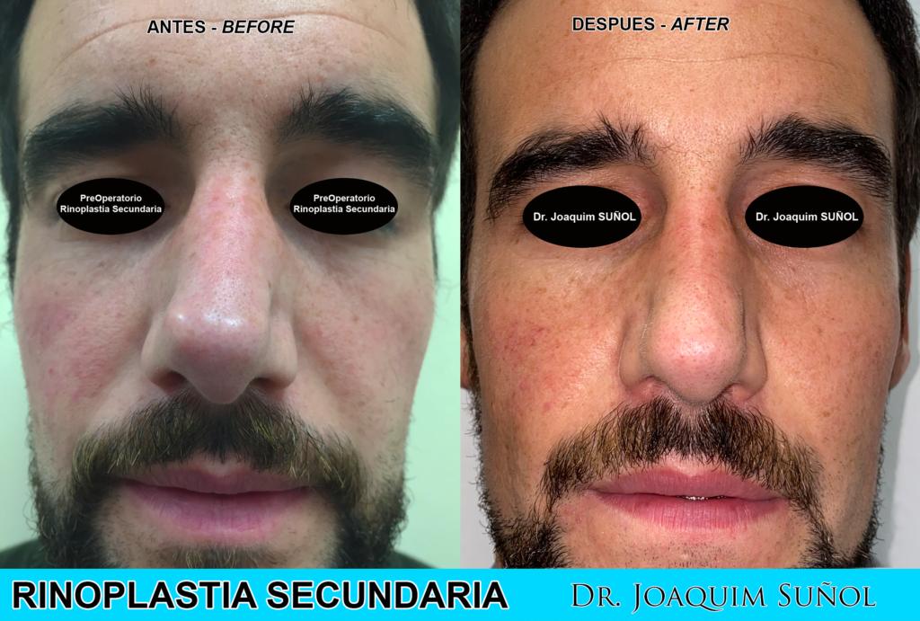 rinoplastia secundaria cirugia estetica joaquim sunol resultados