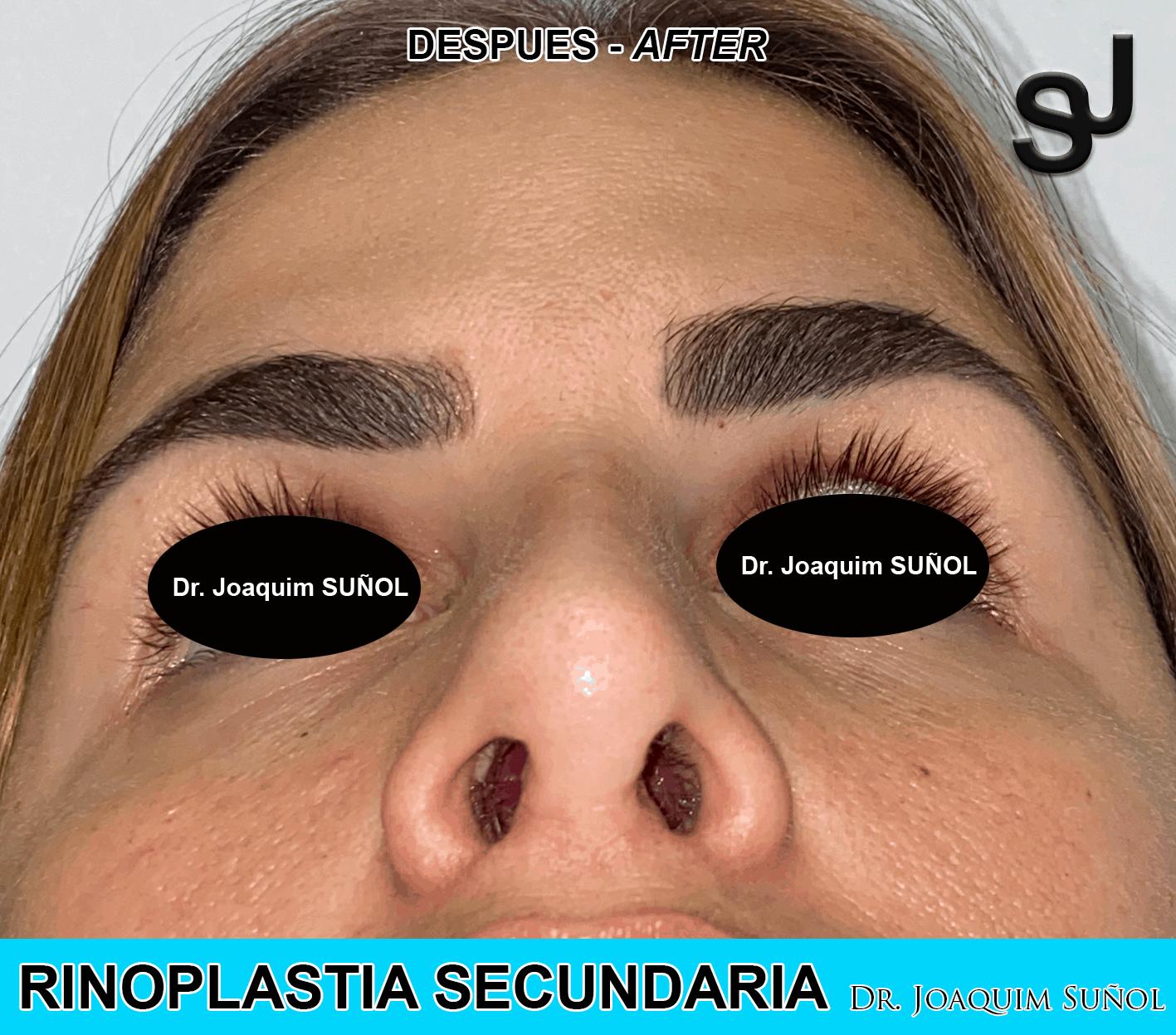 rinoplastia-secundaria-post-joaquim-sunol-cirugia-plastica-estetica